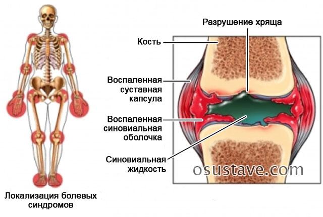 воспаление сухожилий и суставных оболочек при реактивном артрите