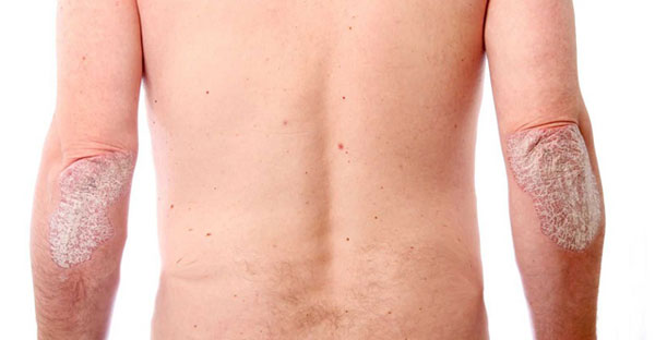 Псориатический артрит симптомы и лечение