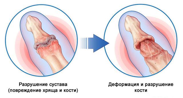 деформация суставов при псориатическом артрите