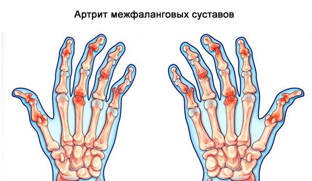 артрит межфаланговых суставов