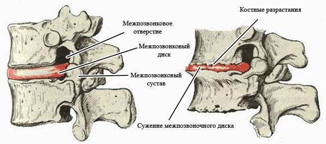 разрастание остеофитов и сужение межпозвонковой щели