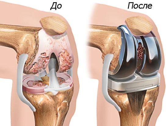 поврежденный сустав и его протезирование