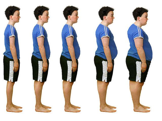искривление осанки в зависимости от повышения индекса массы тела