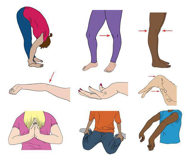 признаки гипермобильности суставов