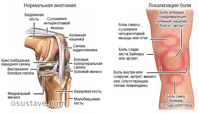 локализация боли при различных заболеваниях