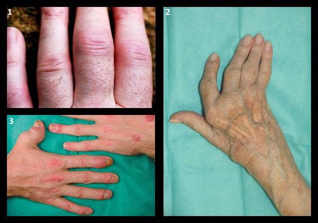клиническая картина артритов различной этиологии