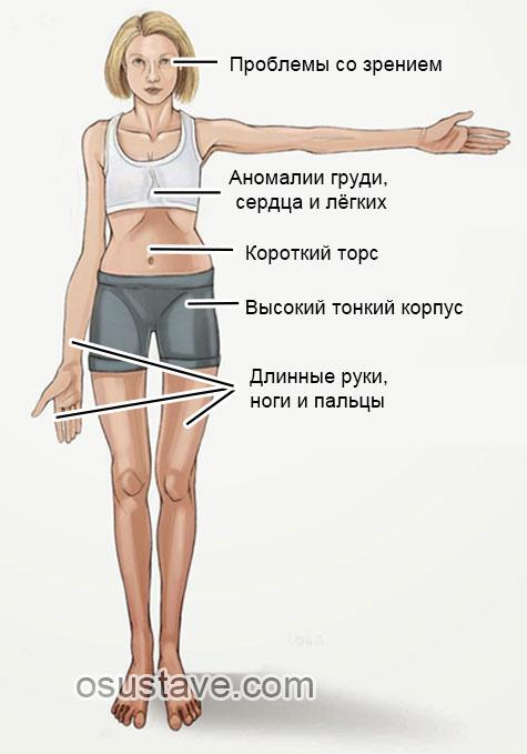 признаки болезни марфана
