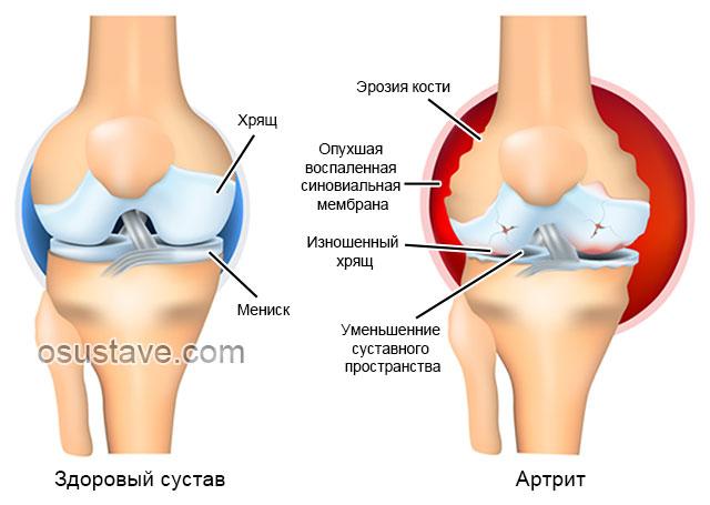 здоровый сустав и артрит