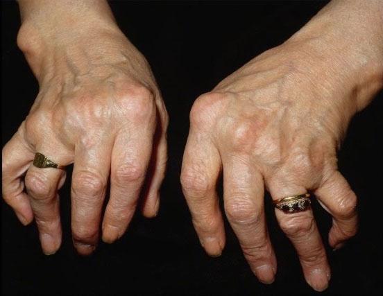 деформация кистей при ревматоидном полиартрите