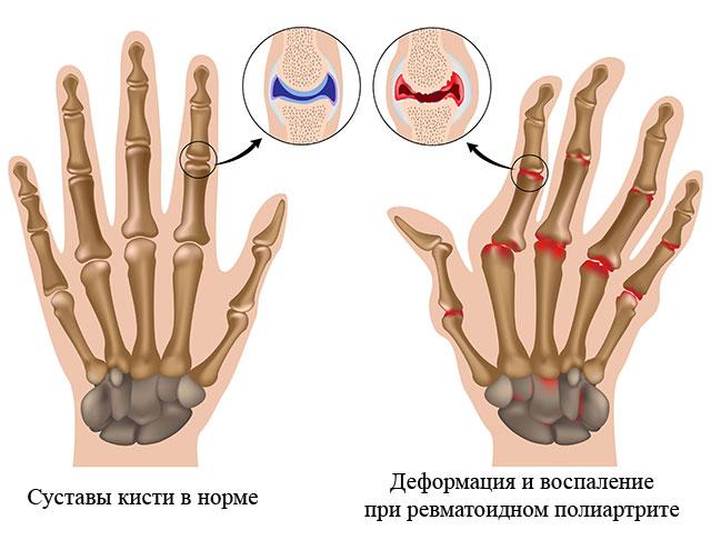 нормальная кисть и S-образная деформация суставов кисти, характерная для ревматоидного полиартрита