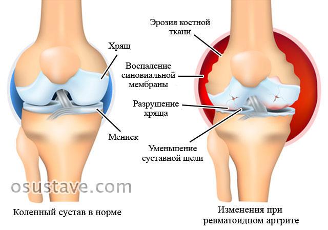 нормальный коленный сустав и поражение сустава при ревматоидном артрите