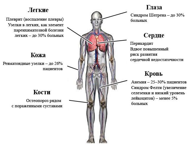 влияние ревматоидного полиартрита на различные органы и системы