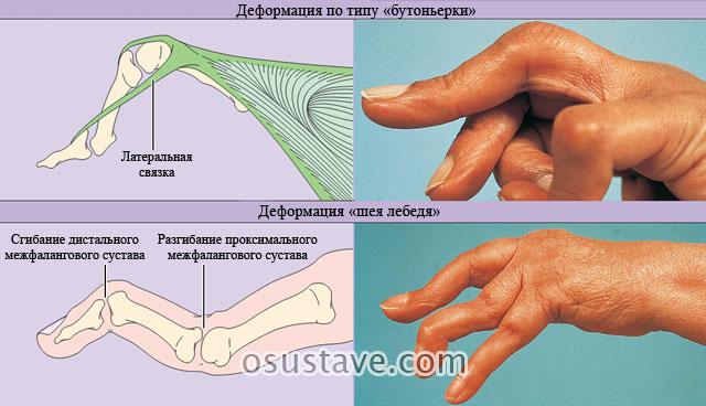 типичные деформации суставов кистей рук у пациентов с ревматоидным артритом по типу бутоньерки и по типу шеи лебедя