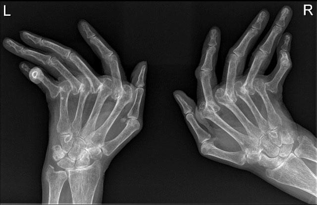 рентгенограмма кистей больного ревматоидным полиартритом