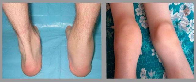 поражение голеностопного и коленного сустава при олигоартрите