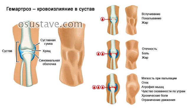 гемартроз колена