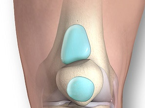 Как бороться с жидкостью в коленных суставах, почему в коленях появляется лишняя жидкость, как избавиться от жидкости в суставах: медикаментозные методы и рецепты народной медицины
