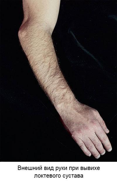 внешний вид руки при вывихе локтевого сустава