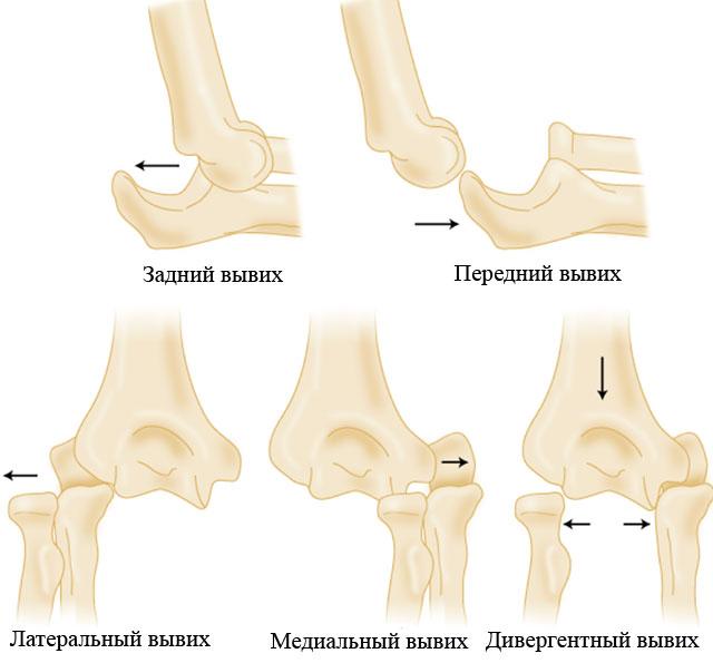 классификация вывихов локтевого сустава