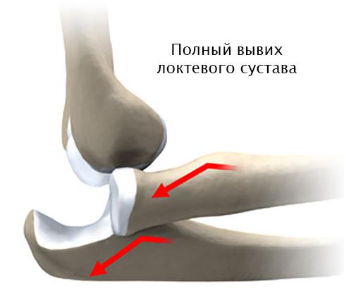 схематичный полный вывих локтевого сустава