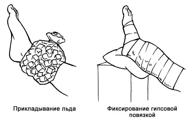методы лечения связок голеностопа при полном разрыве