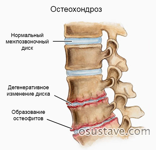 схематичное изображение остеохондроза