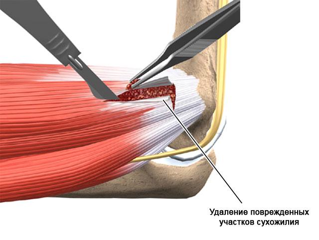 тендопериостеотомия локтевого сустава