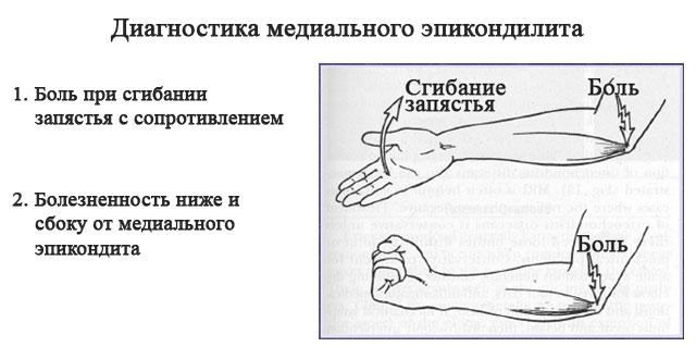 диагностика медиального эпикондилита