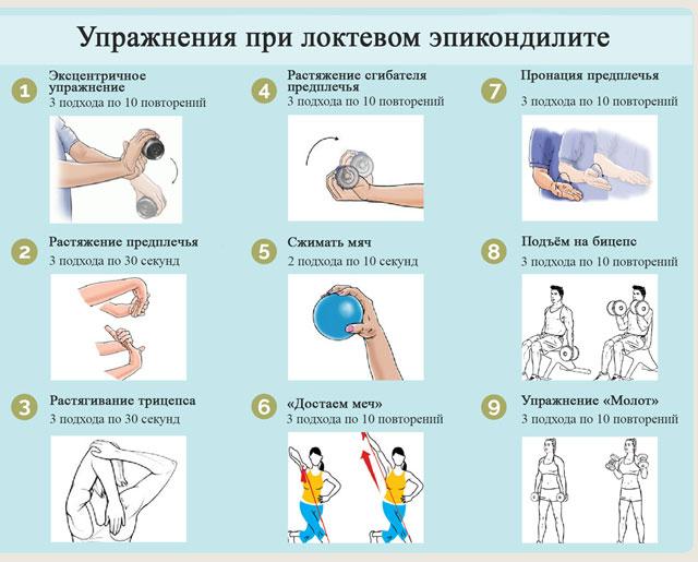 лечебная физкультура при эпикондилите локтя