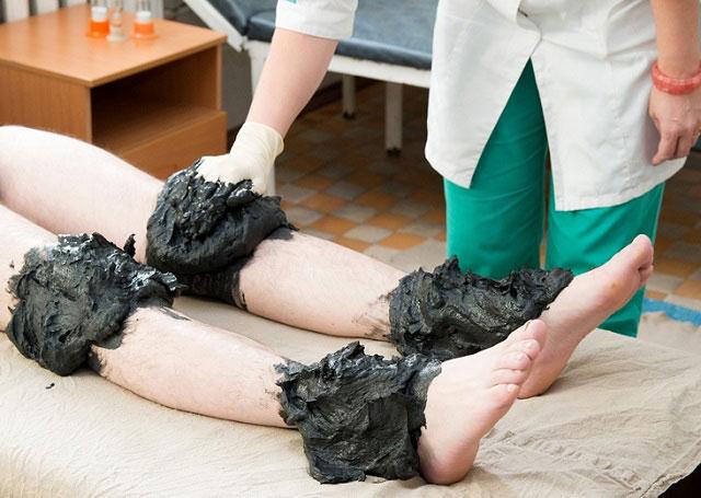 лечение грязью