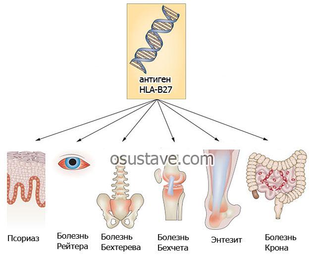 болезни, связанные с мутацией антигена HLA-B27