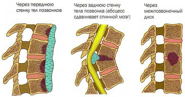 туберкулезный спондилит с образованием абсцесса