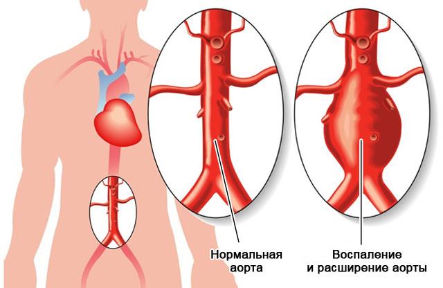 воспаление и расширение аорты