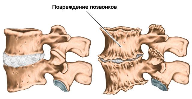 повреждение позвонков при остеохондрозе