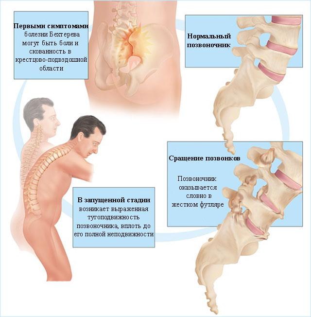 изменения позвоночника, происходящие при болезни Бехтерева