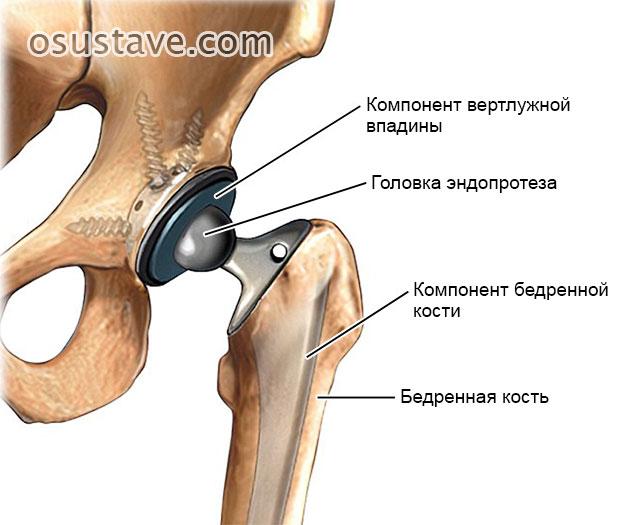 схематичное изображение эндопротезирования тазобедренного сустава
