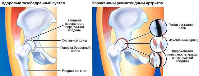 поражение тазобедренного сустава ревматоидным артритом