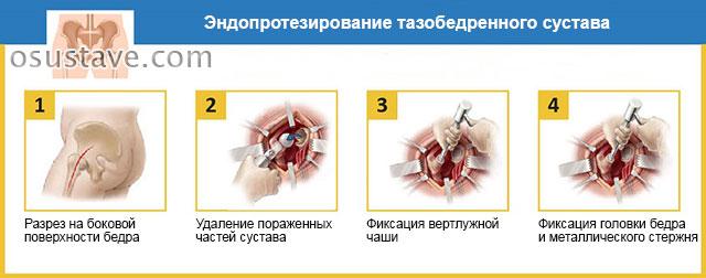ход операции по замене тазобедренного сустава