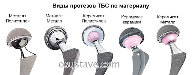 различные материалы для протеза тазобедренного сустава
