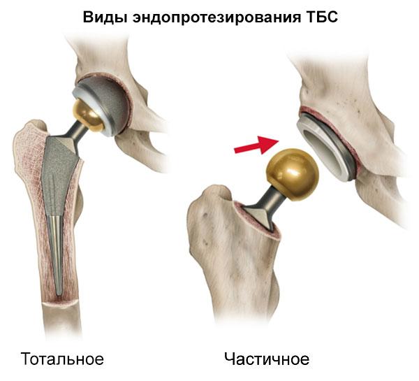 тотальное и частичное эндопротезирование ТБС