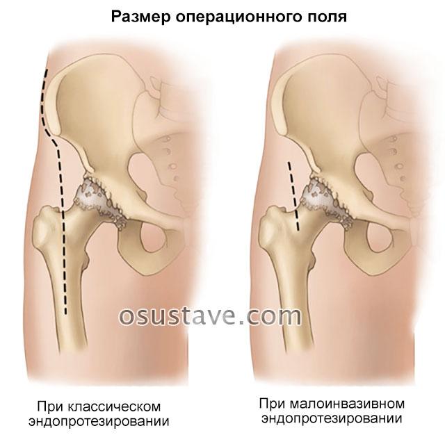 размер операционного поля при классическом и малоинвазивном эндопротезировании