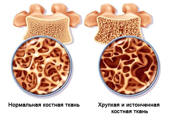 хрупкость костей