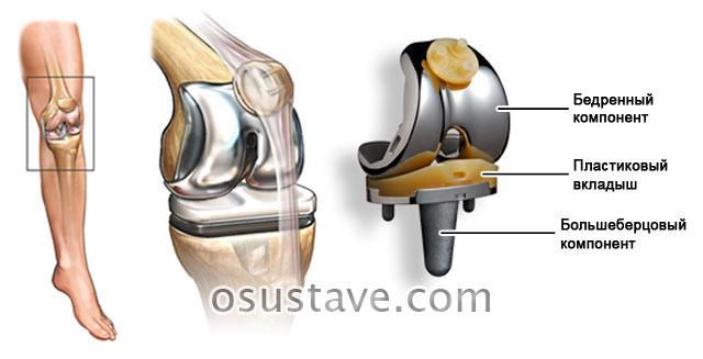 Замена коленного сустава по квоте — особенности получения