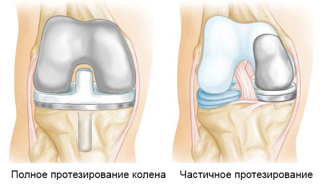 полное и частичное протезирование коленного сустава