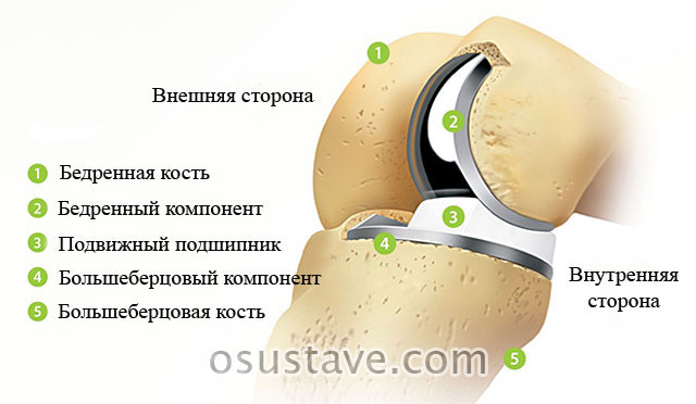 частичная замена коленного сустава