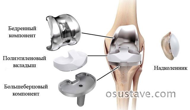 составные части имплантата для полного эндопротезирования коленного сустава