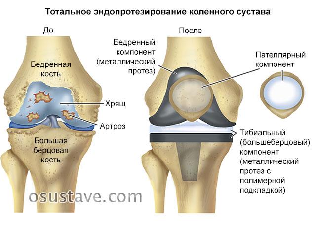 до и после эндопротезирования коленного сустава