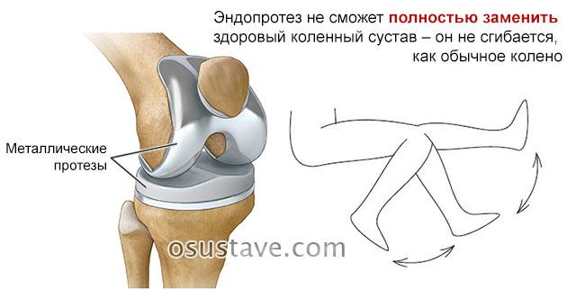 коленный сустав после операции по протезированию