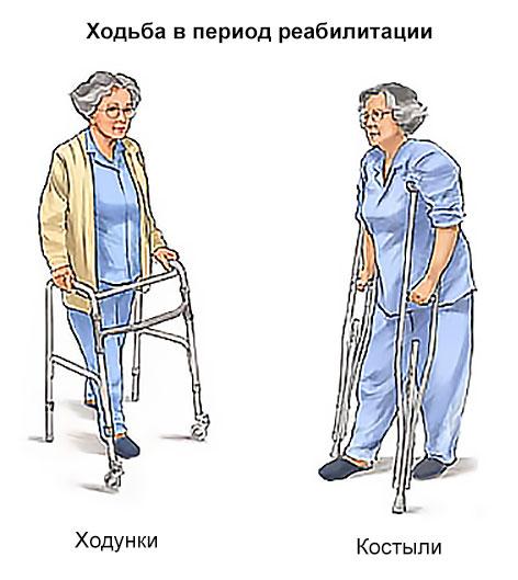 прогулки с помощью вспомогательных устройств
