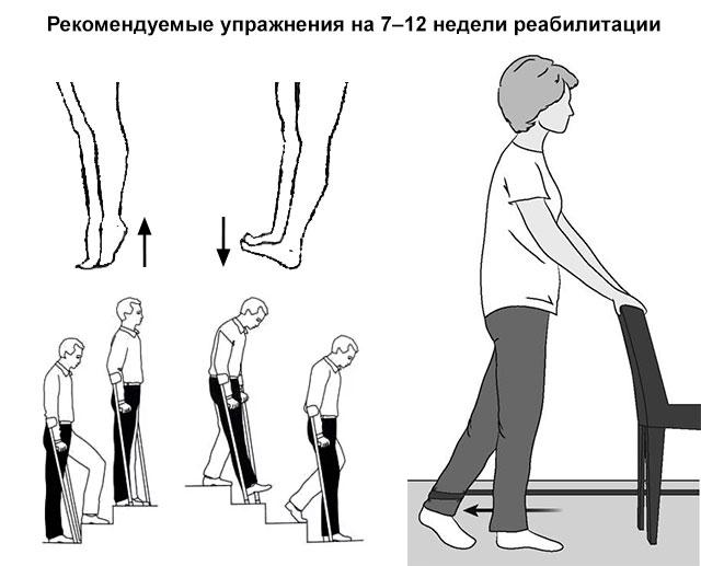 рекомендуемые упражнения на 7–12 недели реабилитации